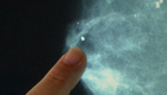 imagen de Prevención y diagnóstico oportuno
